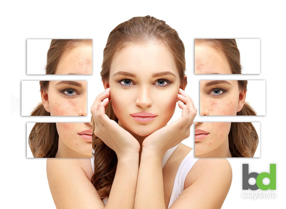 Laser Acne Scar Removal Timeline How Long Until I See
