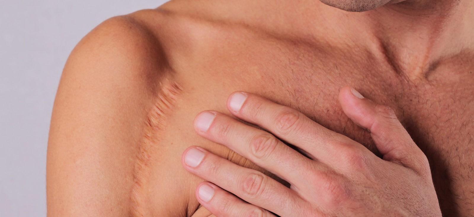 man with large shoulder mark seeking scar reduction